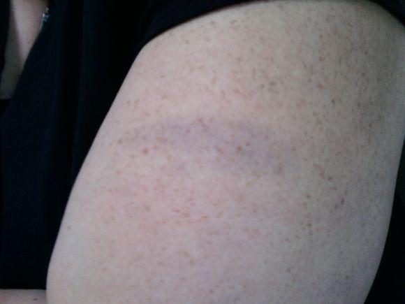 Freckled Bruise
